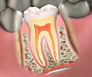 Should an Endodontist Perform Your Root Canal Treatment?