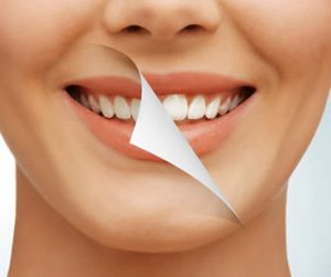 Regaining Your Confidence through Teeth Whitening
