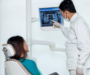 Answers to Your Questions About Dental Crowns and Bridges